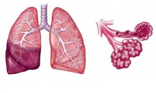 Пневмония. причины, симптомы, современная диагностика и эффективное лечение болезни.