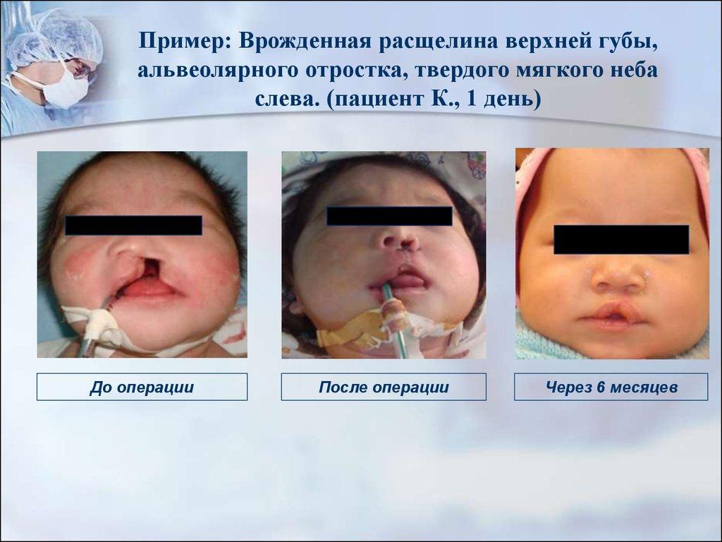 Волчья пасть у детей. фото до и после операции, причины появления, лечение
