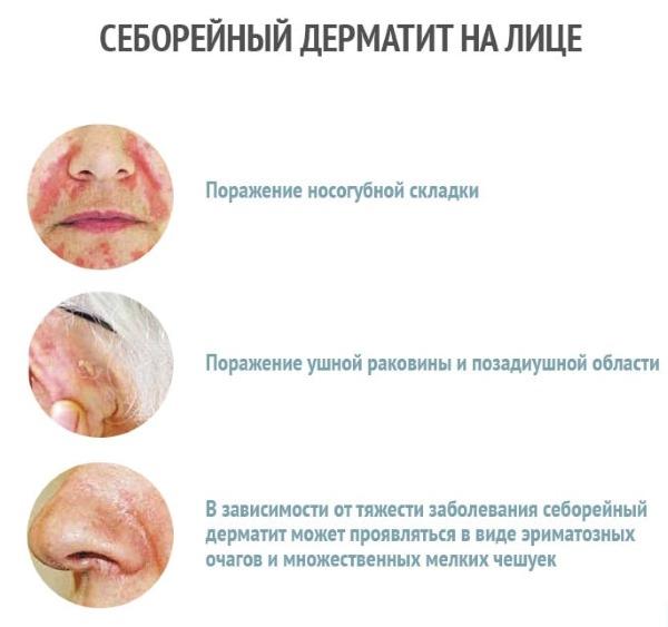 Чешется кожа тела: причины, лечение кожного зуда, фото