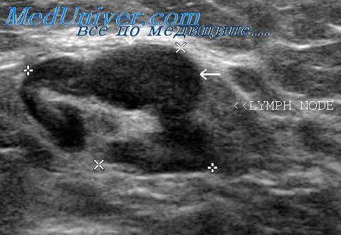 Мастодиния молочной железы. когда стоит беспокоиться? мастодиния и другие заболевания груди у женщин. как определить?