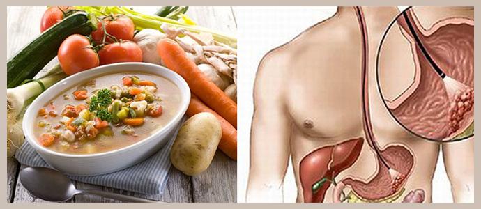 Диеты После Грыжи. Грыжа пищевода: лечебное питание и примерное меню при ГПОД