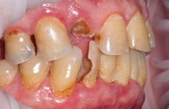 Штифт в зубе — экономное восстановление зубного ряда