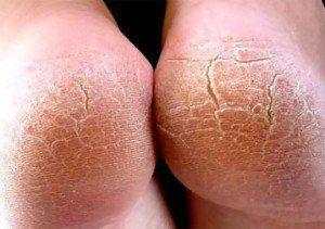 Грибок стопы: симптомы, лечение, современные препараты. много фото