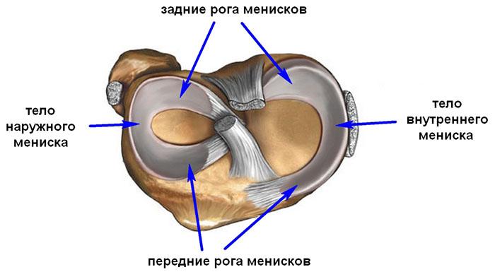 Особенности терапии застарелого повреждения мениска: методы устранения боли и скованности в суставе