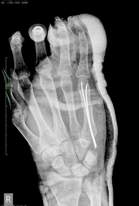 Строение лучевой кости руки человека - виды переломов, лечение и реабилитация