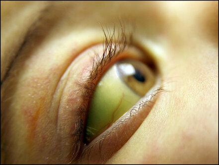 При какой болезни зеленоватый оттенок кожи. желтушность кожных покровов