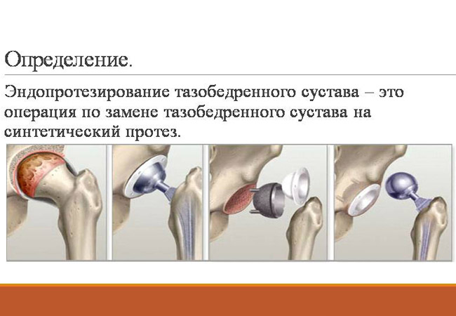 Чем опасно эндопротезирование суставов - нолтрекс. препарат для лечения остеоартроза, артроза, артрита, остеоартрита и других болезней суставов