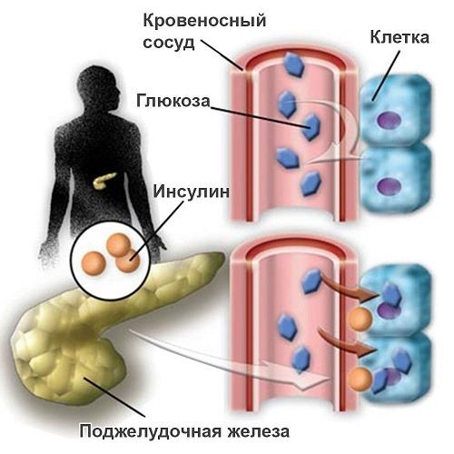 Сахарный диабет это эндокринное заболевание, характеризующееся хроническим повышением уровня сахара в крови вследствие абсолютного или относительного. - презентация