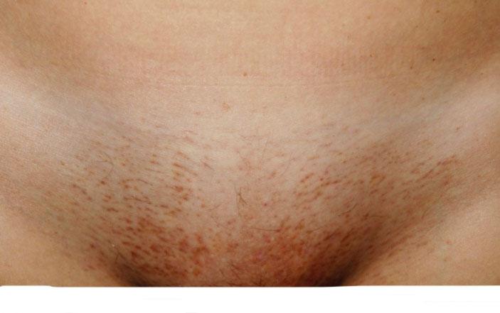 Лечение паховой эпидермофитии у мужчин