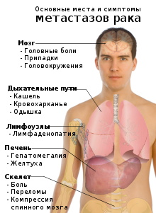 Лекарства от кашля при онкологии