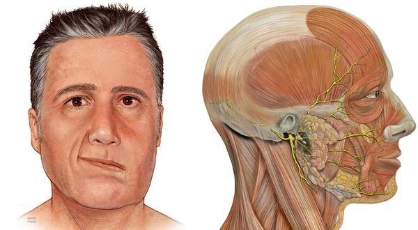 Парез лицевого нерва: причины, симптомы, лечение медикаментами и в домашних условиях, а также меры профилактики — симптомы