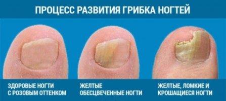 «аморолфин» — лак для лечения грибка ногтей. инструкция по применению, отзывы, цена