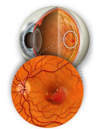 «влажная» форма макулодистрофии (экссудативная, неоваскулярная)