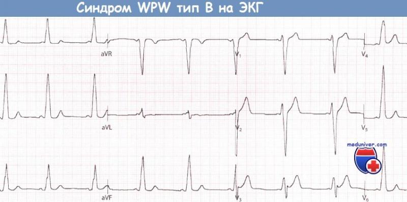 Синдром wpw (впв, вольфа-паркинсона-уайта): причины, признаки, причины