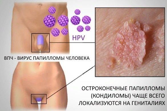 Вирус папилломы человека: симптоматика и угрозы