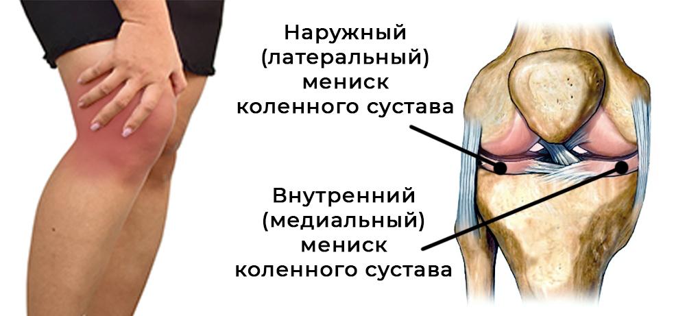 Мениск коленного сустава: анатомия, травмы, лечение