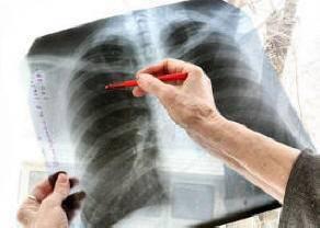 Применение барсучьего жира при туберкулезе
