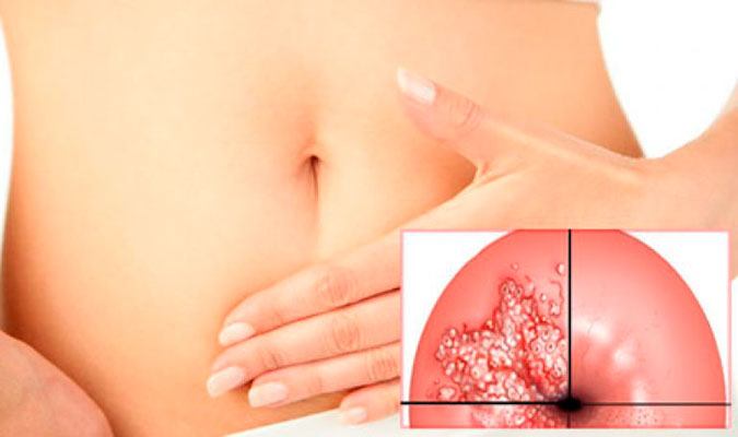 Дисплазия шейки матки - что это?