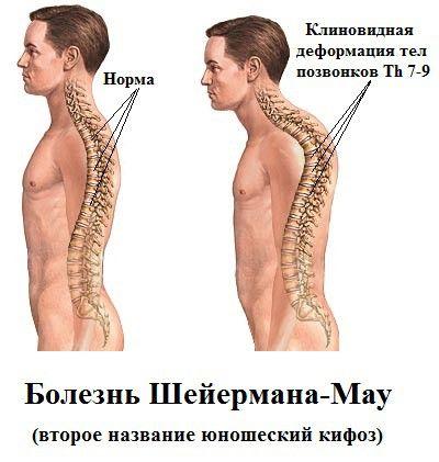 Болезнь шейермана-мау – что это такое? болезнь позвоночника шейермана-мау – лечение