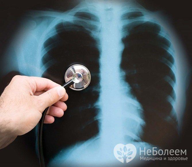 Очаговая пневмония у детей и взрослых. симптомы и лечение очаговой пневмонии