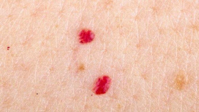 Причины появления кавернозной ангиомы и способы лечения