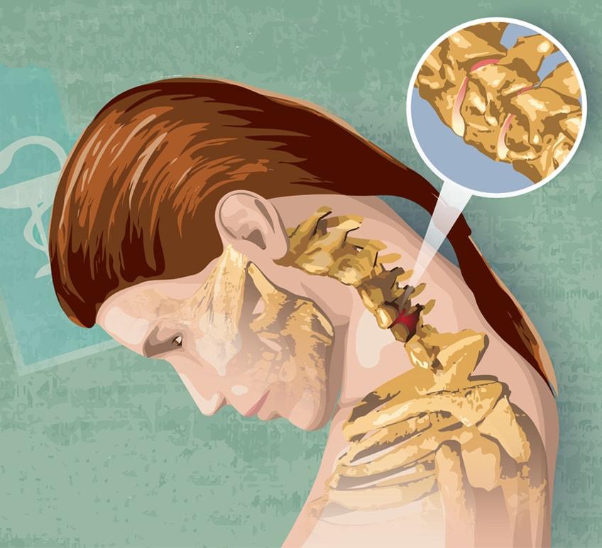 Всем ли можно делать массаж при шейном остеохондрозе, кому он противопоказан и как усилить эффективность процедуры?