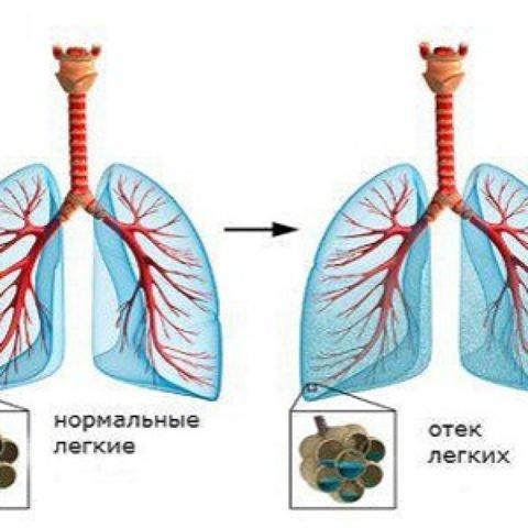 Особенности хронического бронхита, методы лечения у взрослых и медикаментозные препараты