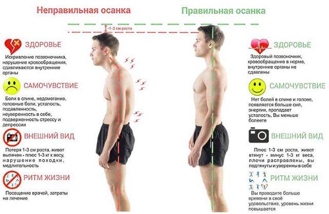 Упражнения при кифозе шейного отдела