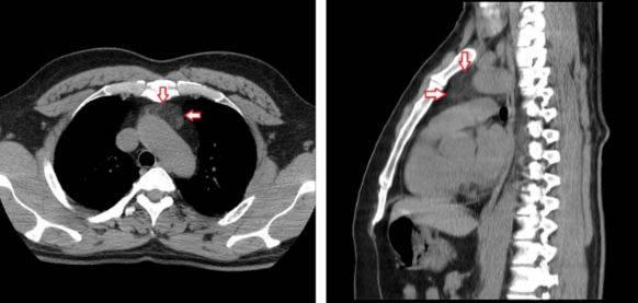Туберкулёз на рентгене: особенности диагностики