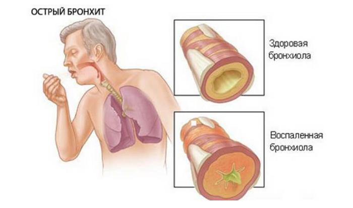 Мокрота при бронхиальной астме. пример фото какая она