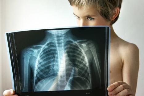 Воспаление легких, симптомы у взрослых без температуры