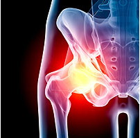 Повторноеэндопротезирование искусственного сустава: как скоро понадобится?