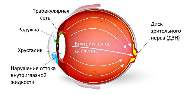 Профилактика глаукомы: основные правила и зрительные нагрузки