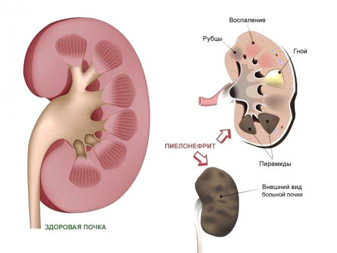 Питание при гидронефрозе – основные рекомендации
