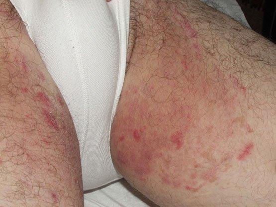 Эпидермофития - виды, симптомы, лечение