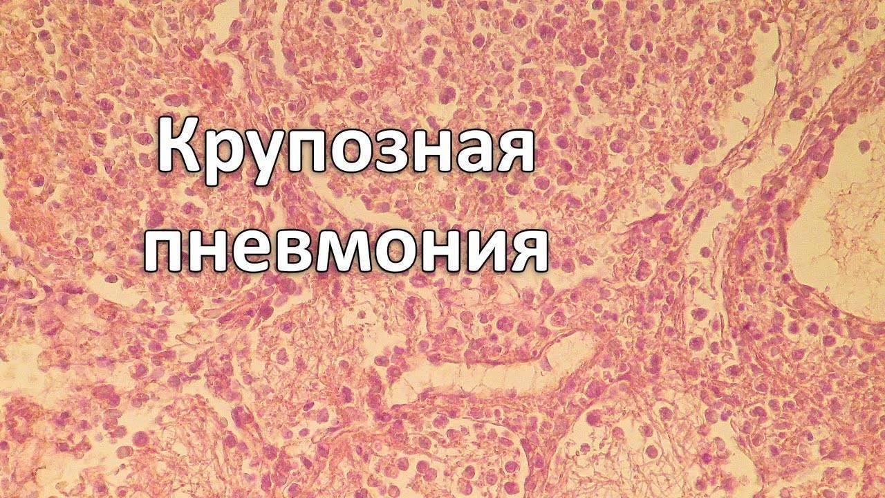 Описание крупозной пневмонии