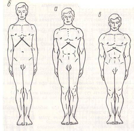 Деформация грудной клетки: причины заболевания, основные симптомы, лечение и профилактика