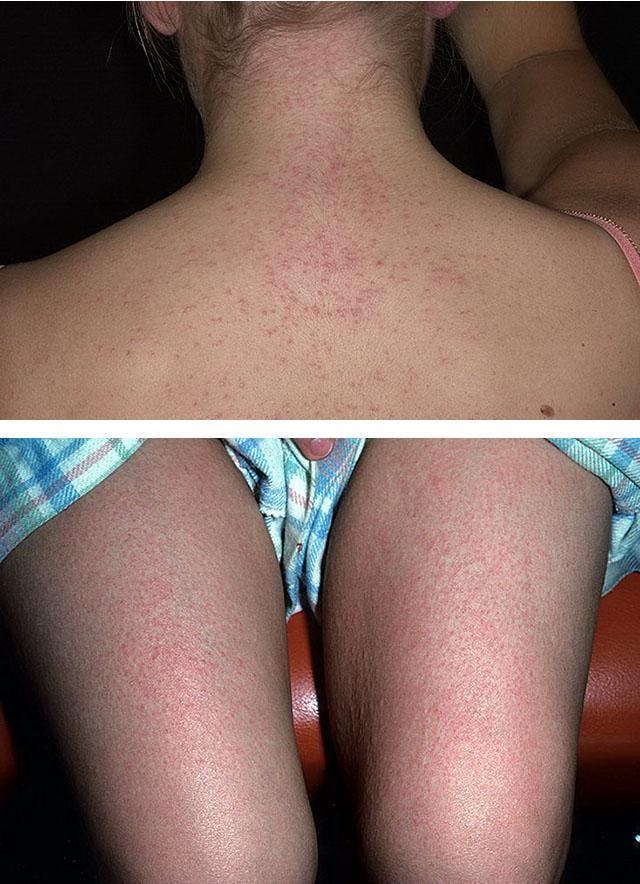 Токсико аллергический дерматит сколько лечится