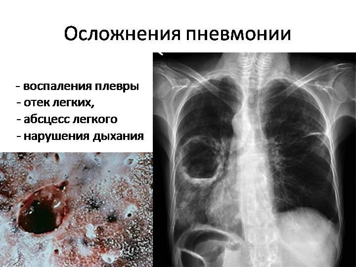 Пневмония без температуры, но с кашлем