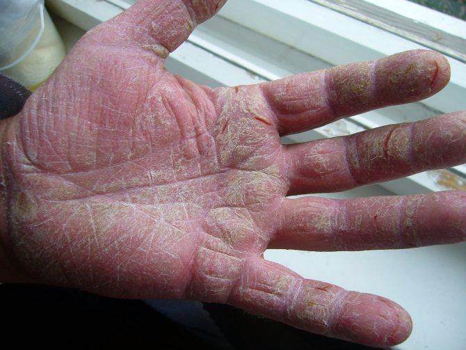 Мокнущая экзема: причины, симптомы и лечение