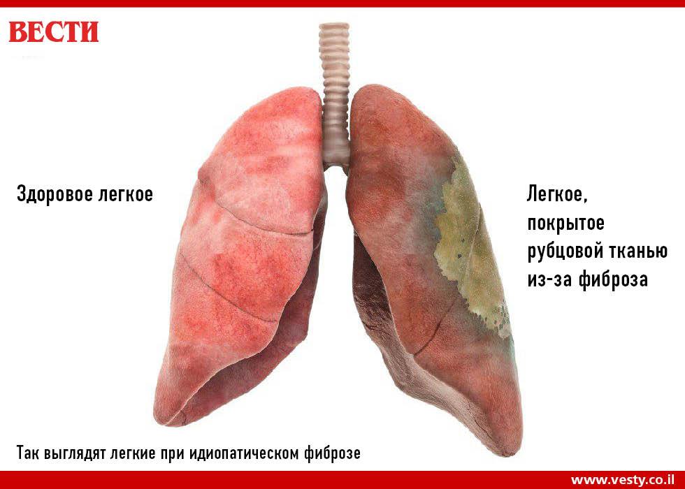 Линейный фиброз легких — обманчивая легкость диагноза