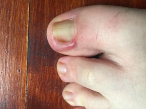 Лечение вросшего ногтя на большом пальце ноги, операция по удалению вросшего ногтя на ногах