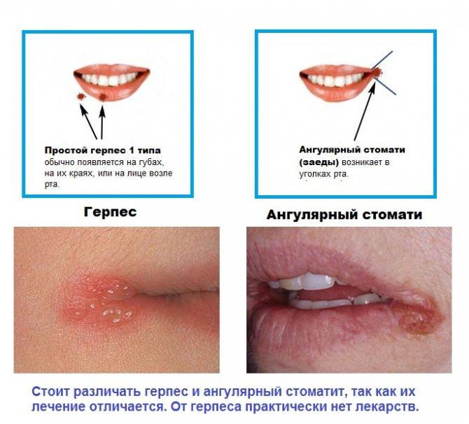 Лечение заедов в уголках губ: лекарства, мази и кремы, витамины и народные средства
