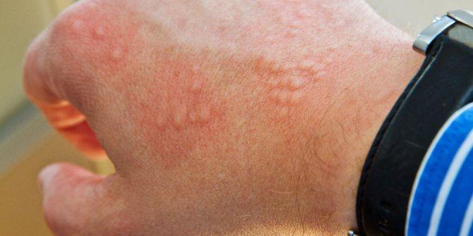 Все о токсико-аллергическом дерматите: лечение, симптомы, причины