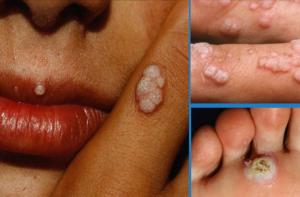 Вирус папилломы человека: симптомы, профилактика и лечение, фото впч