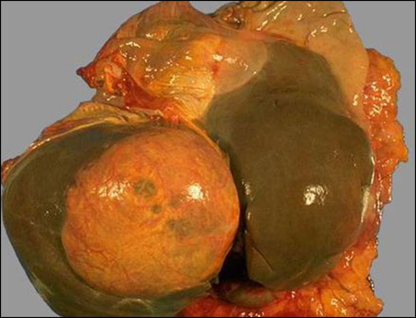 Клиническая картина эхинококкоза печени
