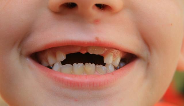 Прорезывание зубов у грудничков: симптомы. как выглядит прорезывание зубов у грудничка? как облегчить прорезывание зубов у грудничка: средства