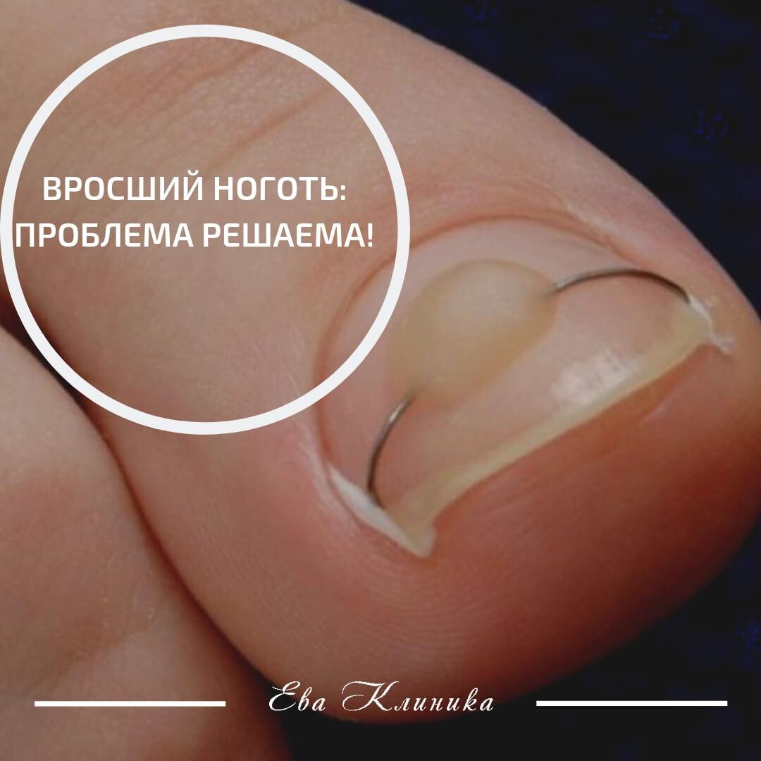 Как удалить ноготь на большом пальце ноги?