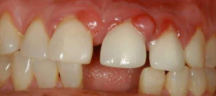 Консервативные способы лечения кисты и гранулемы зуба без оперативного вмешательства