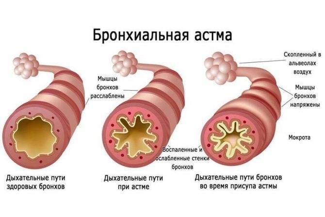 Формы и виды бронхиальной астмы: основные принципы и критерии классификации